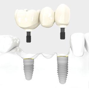 Winnipeg Dental Implant